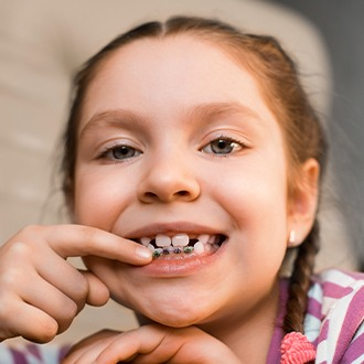 Young girl pointing to her pediatric orthodontics appliance