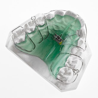 Pediatric orthodontic appliance on model smile
