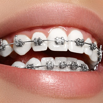 Closeup of smile with traditional braces